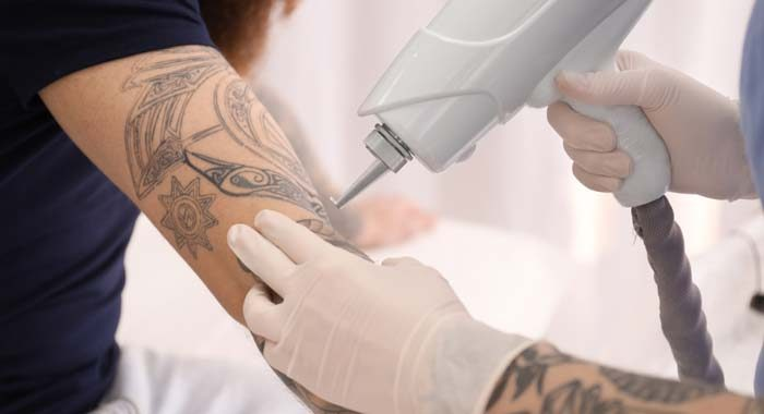 How to remove a permanent tattoo