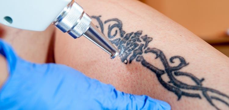 tattoo removal method