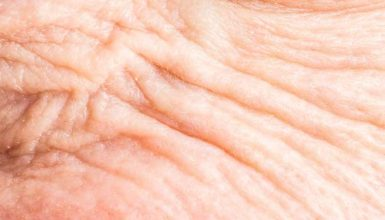 what is wrinkly skin syndrome