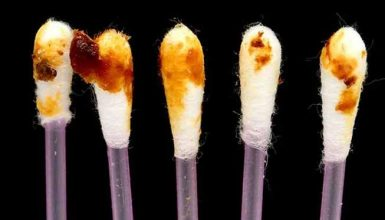 What Does It Mean If Your Earwax Is Black