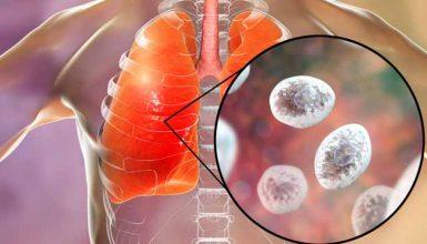 Fungal-Pneumonia