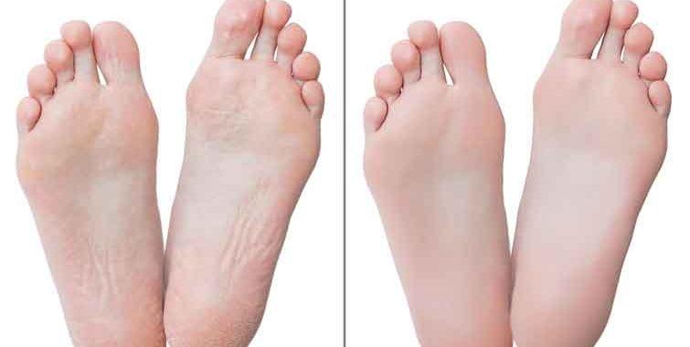The Foot Callus Remover